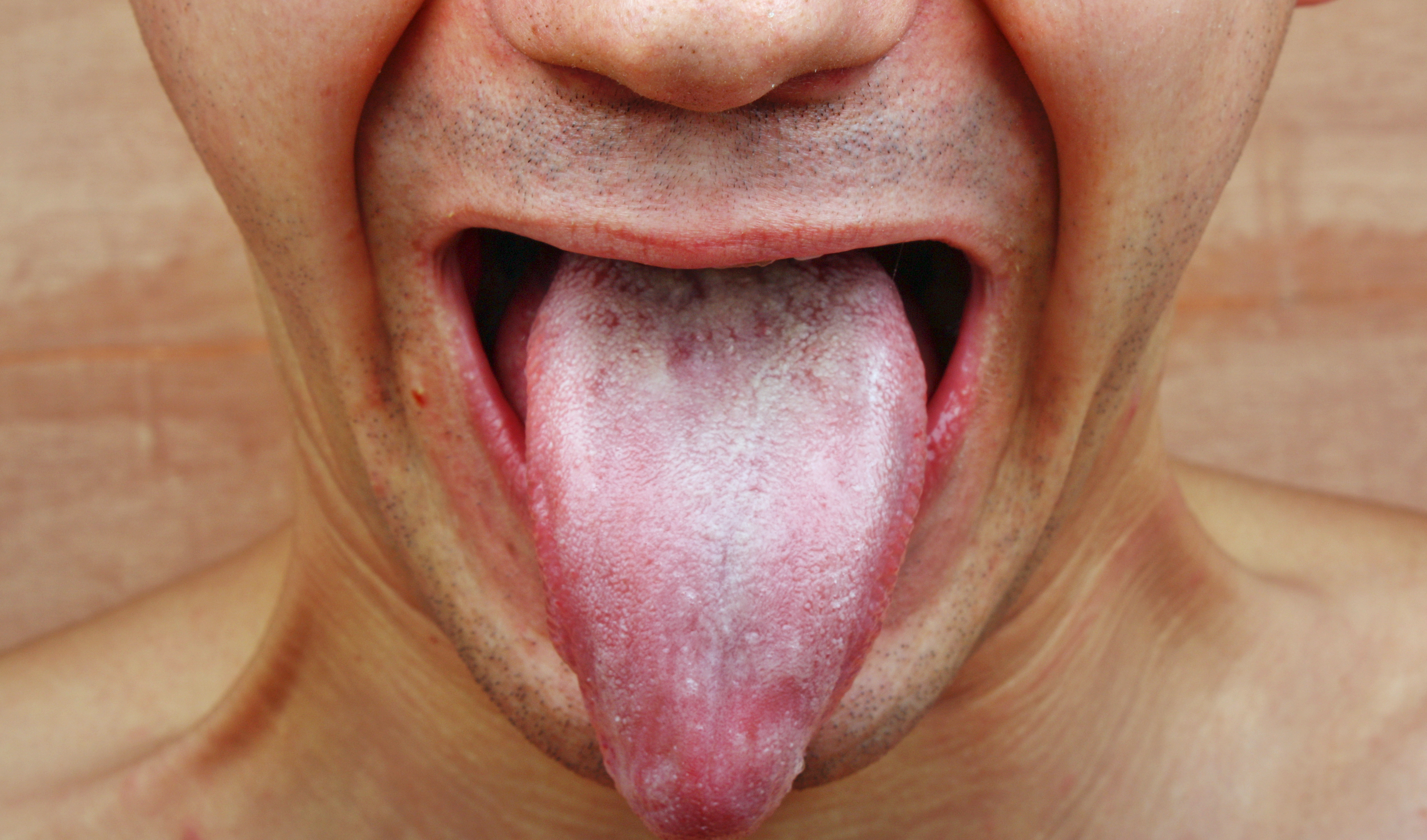 Oral candidiasis: a characteristic of the disease 12