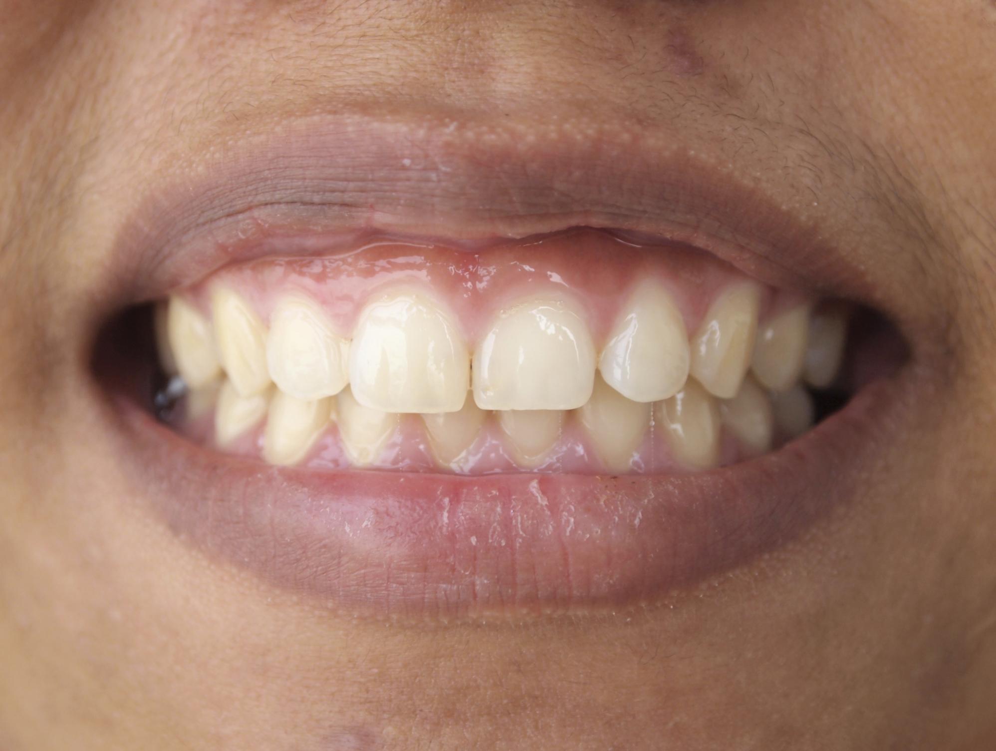 Dark Upper Lip in Pregnancy
