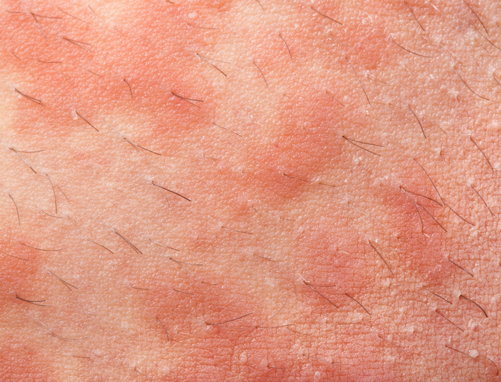 How to Cure Eczema in Three Days