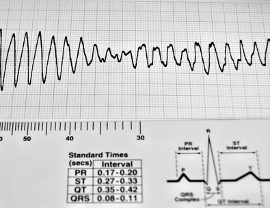 Lectura de la presión arterial 153/95