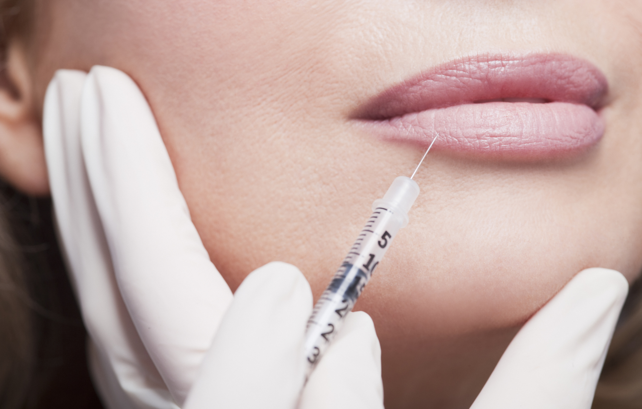 How to Treat Hematoma & Swelling After Botox