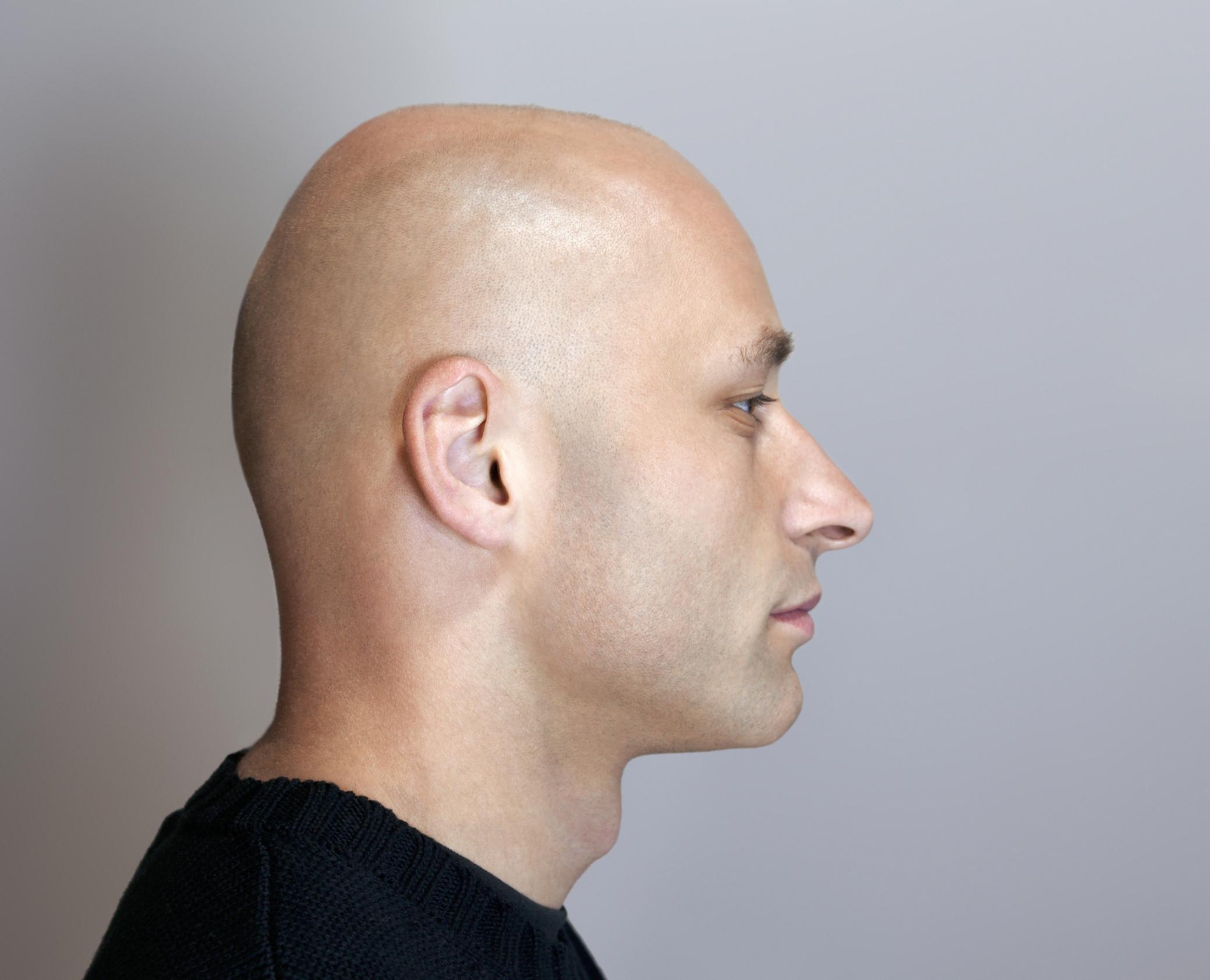 Colloidal Silver Hair Growth