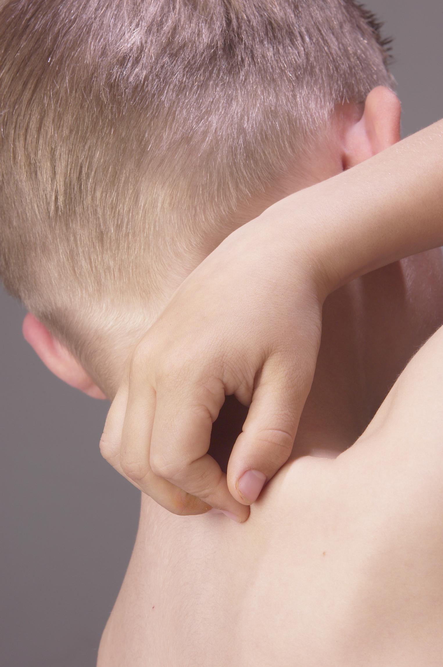 Dry Itchy Skin All Over Body No Rash | Diydrywalls org
