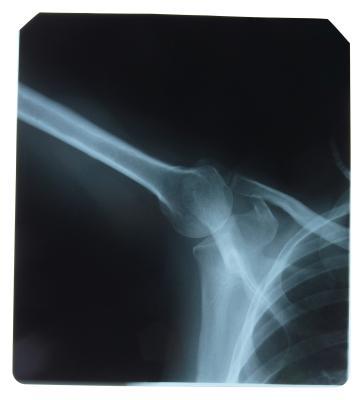 Radiology Tech vs. Ultrasound Tech | Chron.com