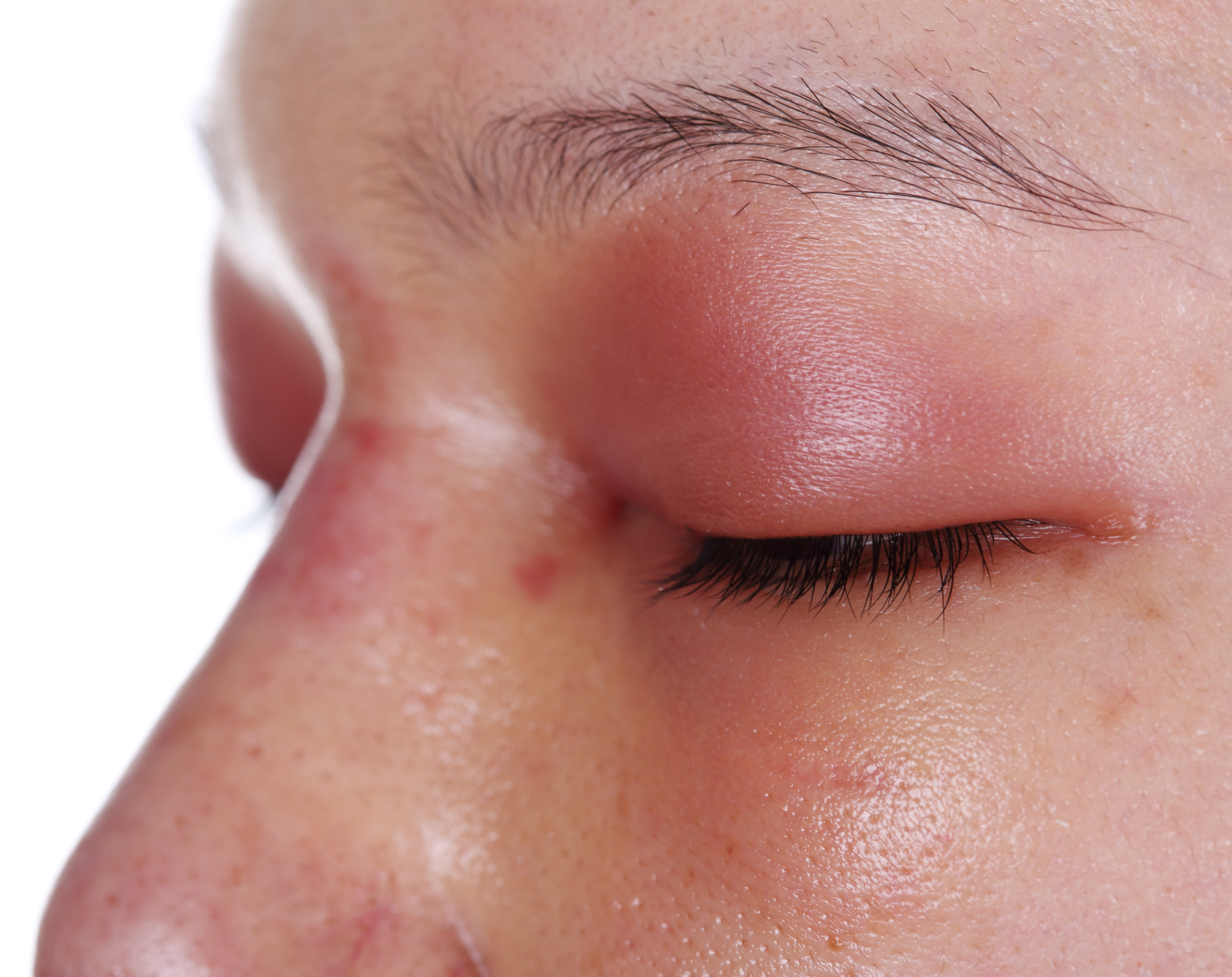 An Allergic Reaction That Causes the Eyes to Swell