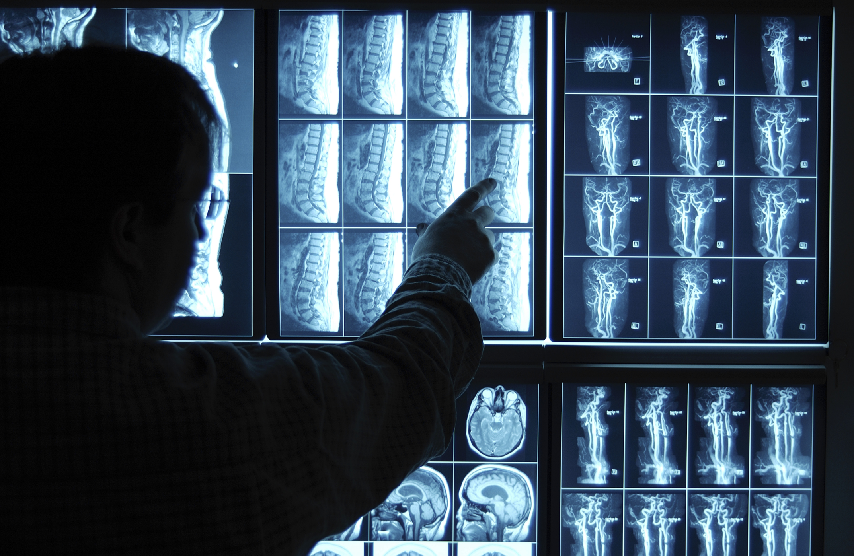 Approximate Entry Level Salary of Neurologist | Chron com