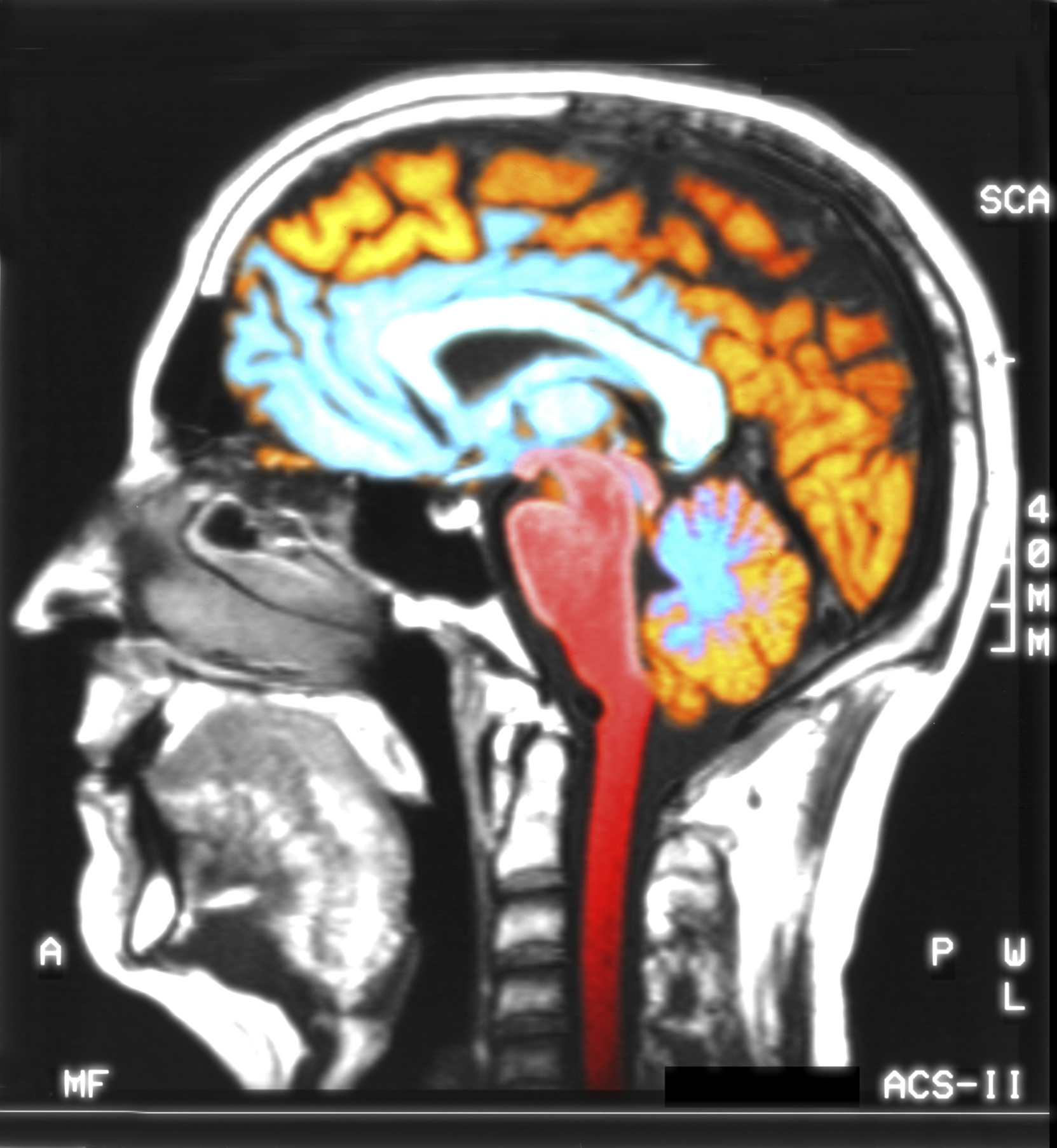 Steps to Becoming a Neuroscientist | Chron.com