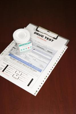 Do Companies Report Failed Drug Tests to the Police? | Chron com