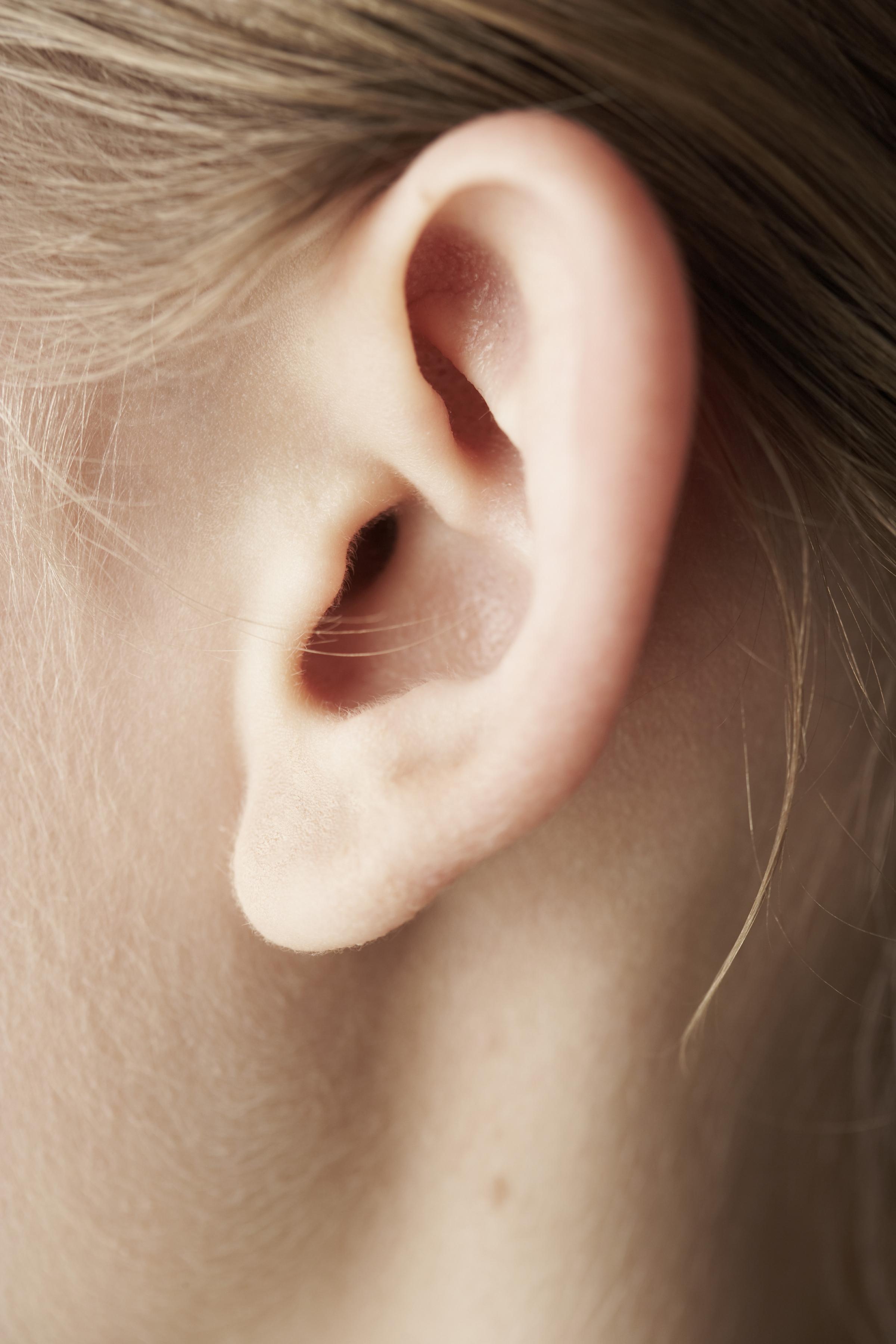How to Get Rid of Keloids From Industrial Piercings