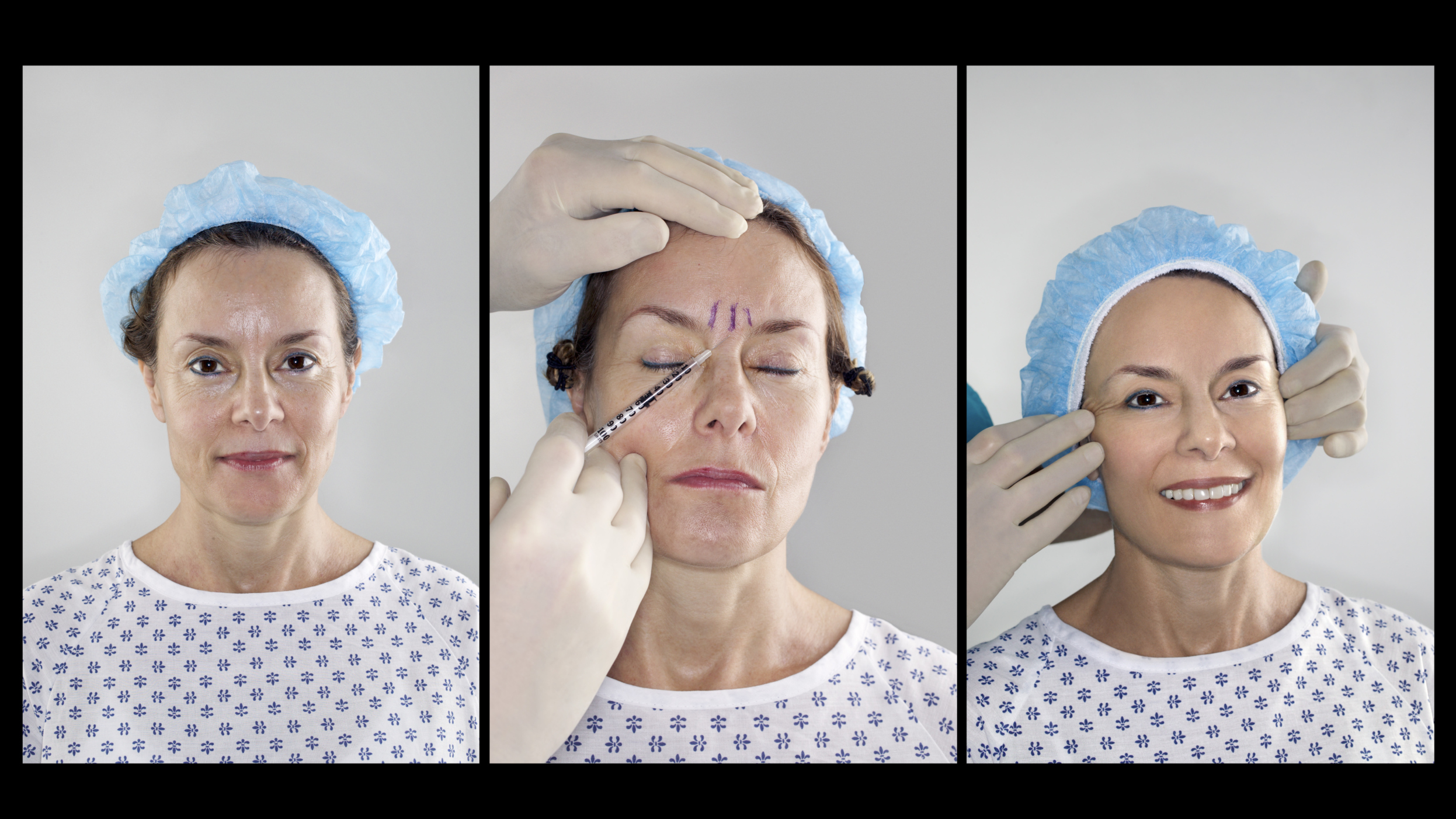 Dermatology Nursing Careers | Chron com