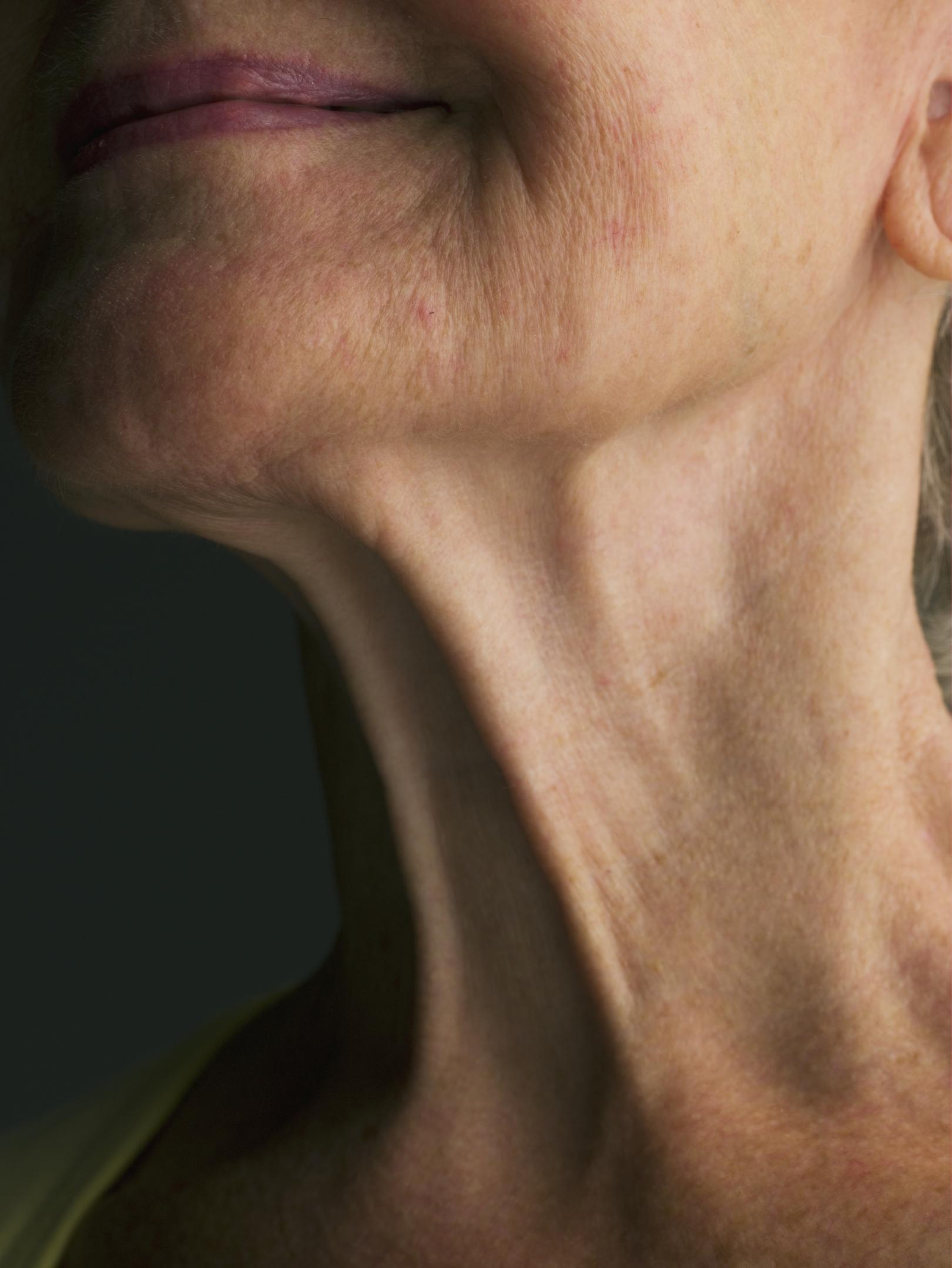 como eliminar la piel sobrante tras adelgazar