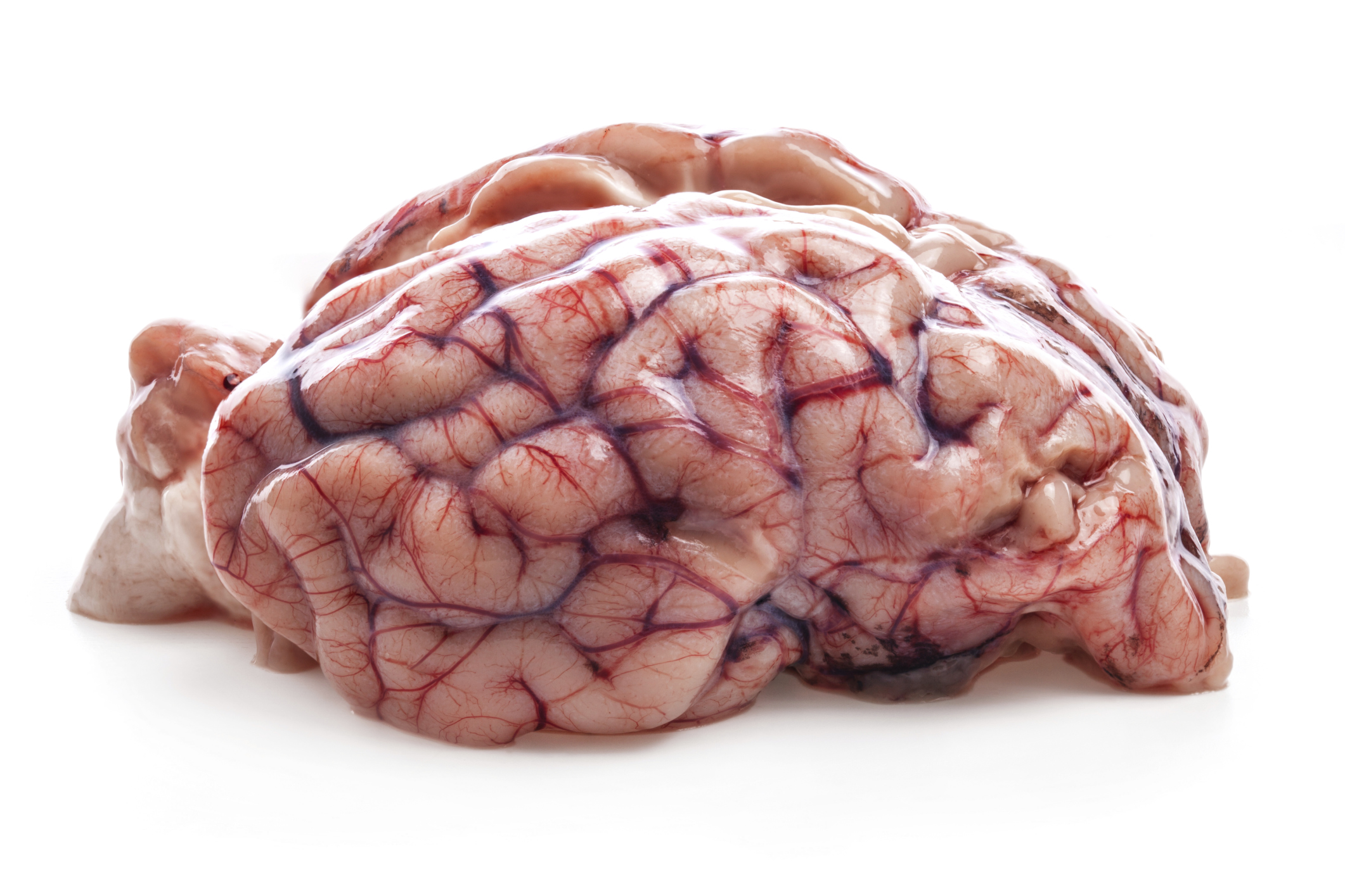 Differences Between Human and Sheep Brains | Animals - mom.me
