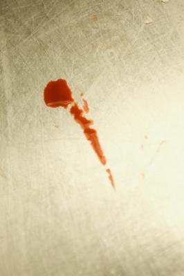 How Do I Become A Blood Splatter Analyst Work Chron Com