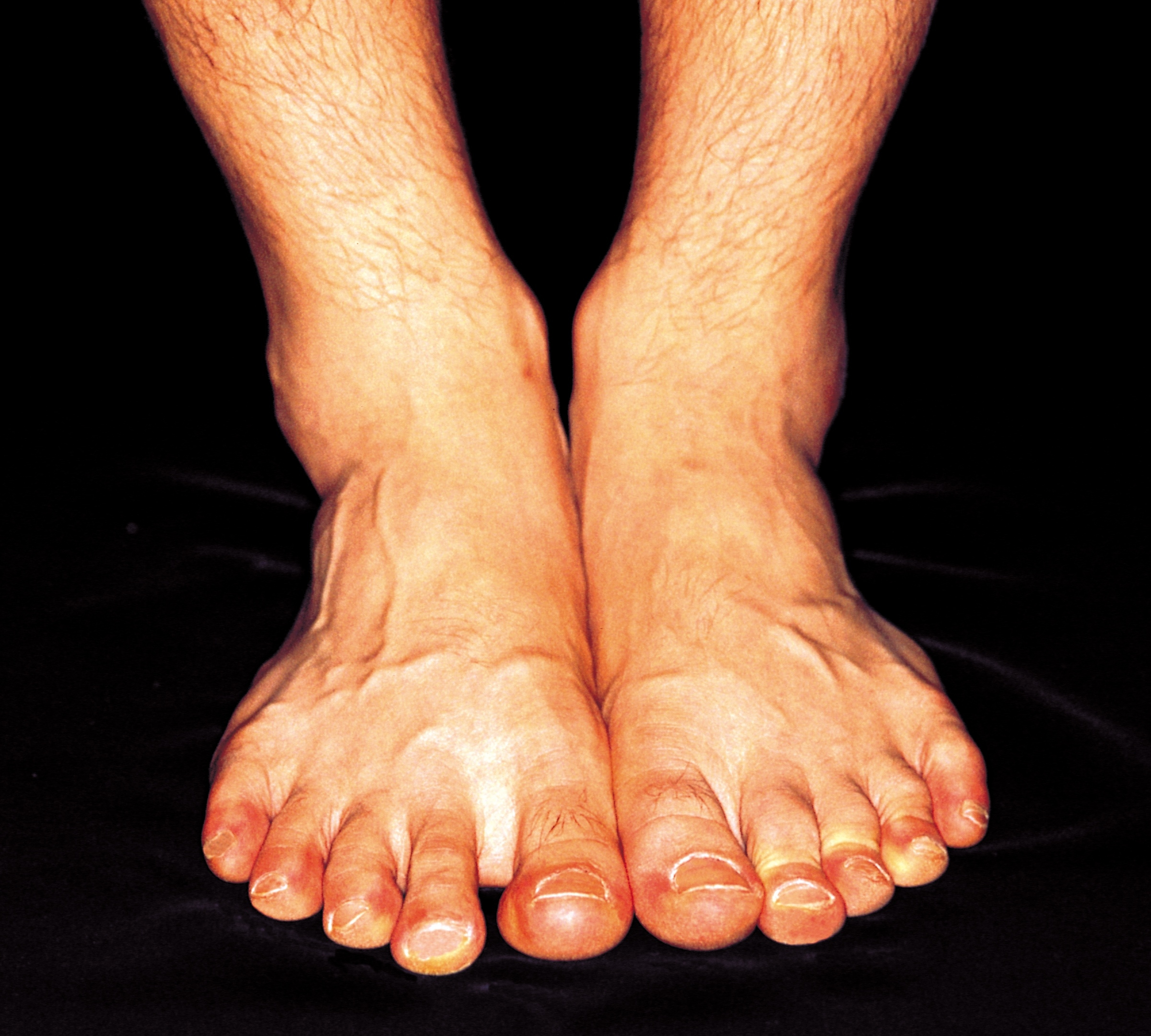 What Causes Red Skin on Feet & Ankles?