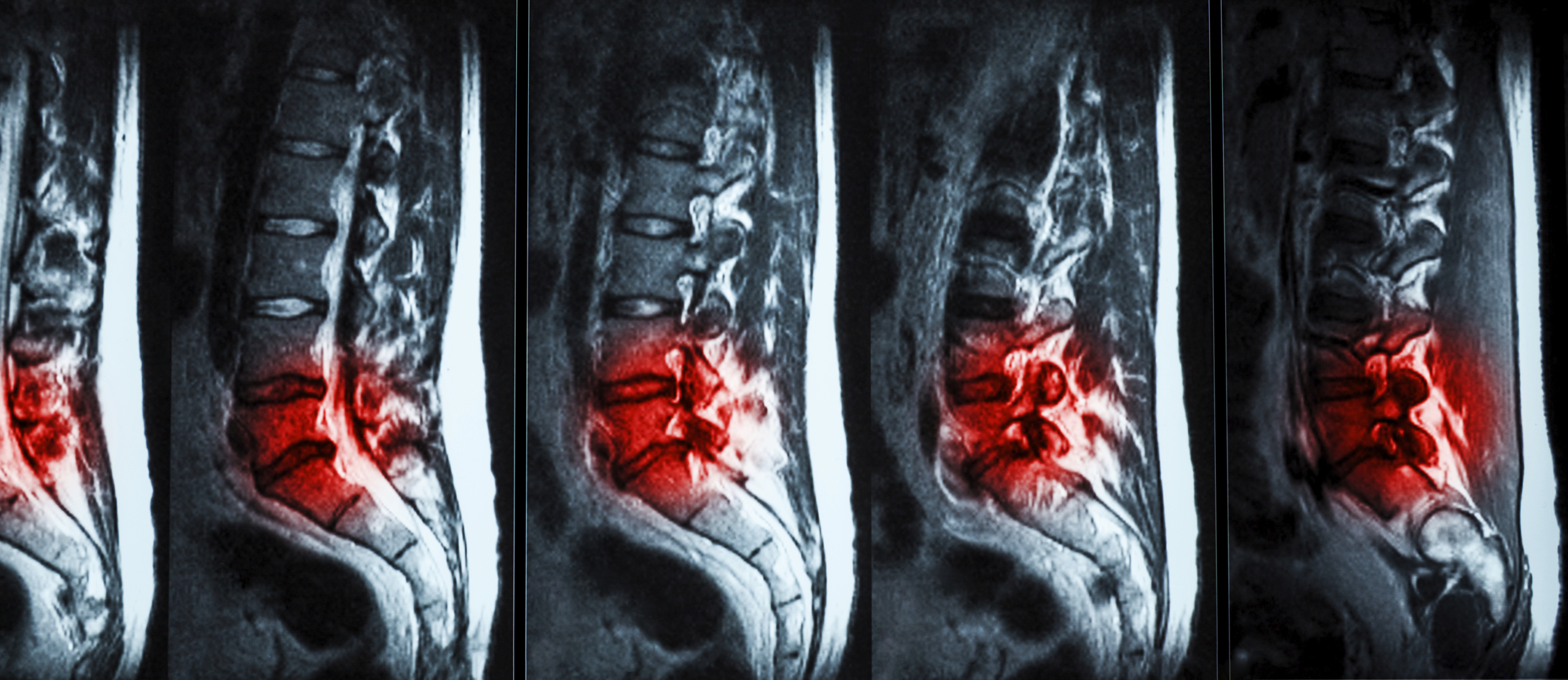 Herniated Disk Exercises for L5-S1