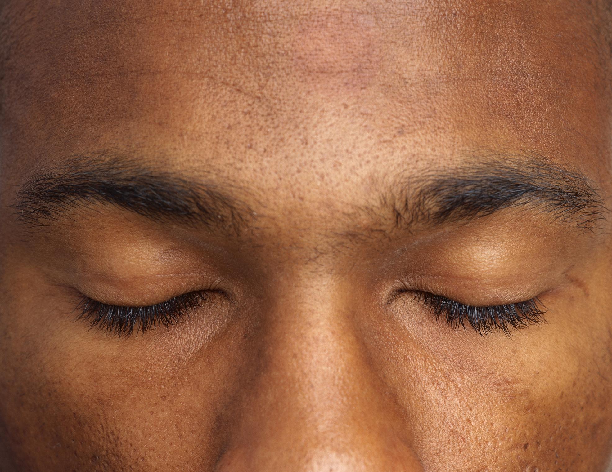 Eyebrow Hair Loss And Stress