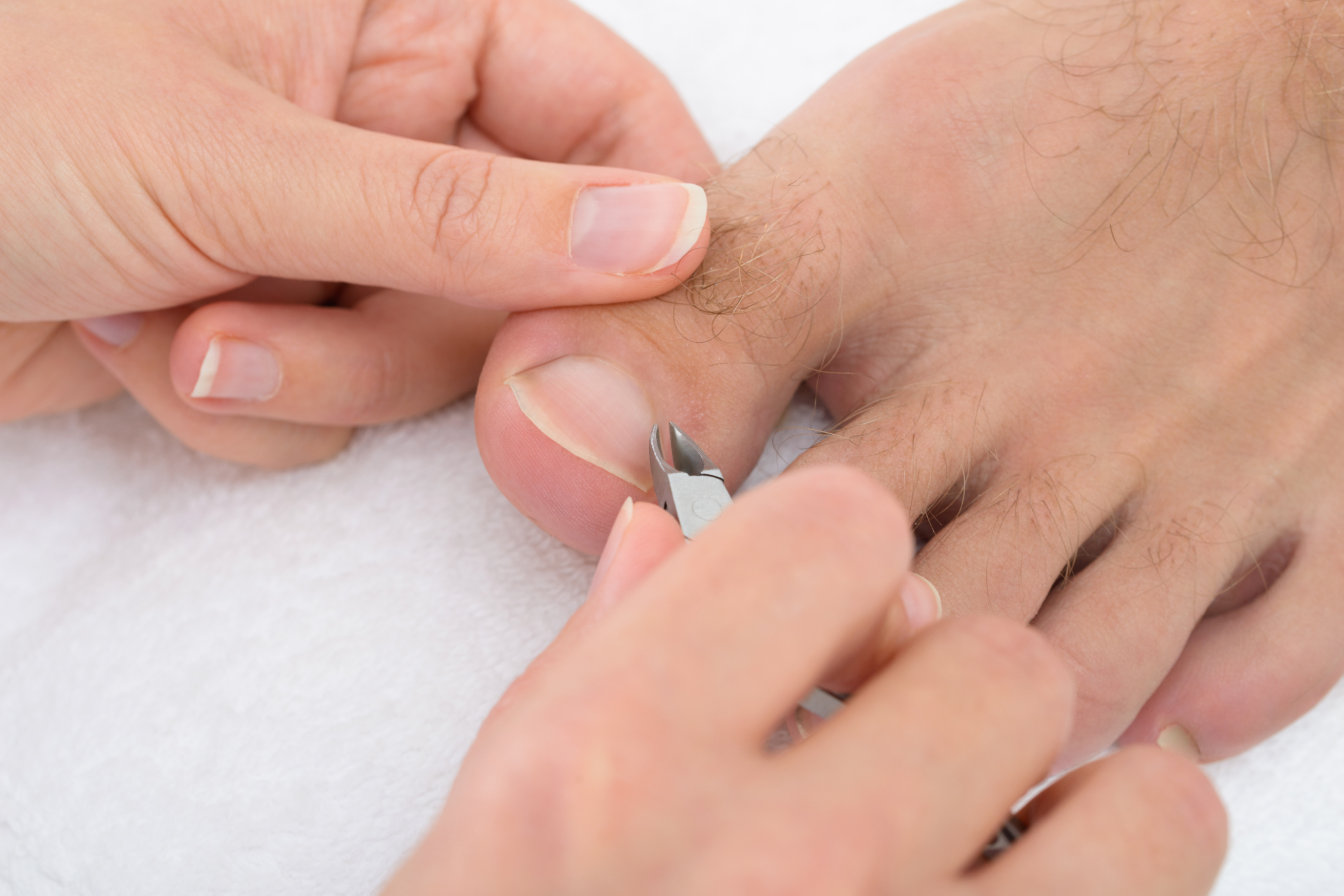 Home Remedies for Cutting Thick Toenails